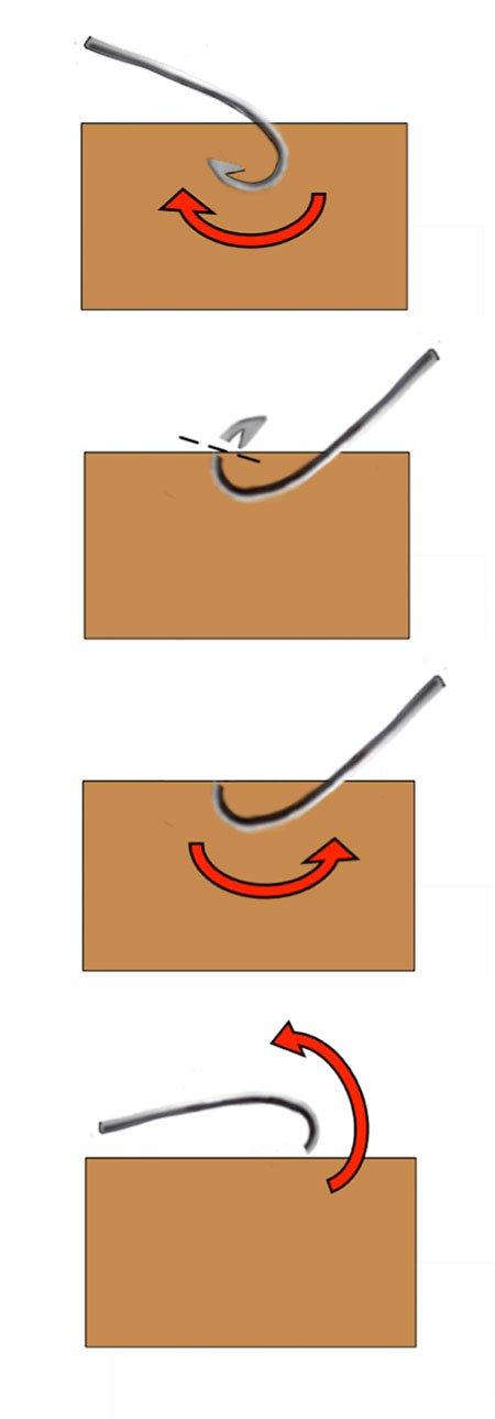 fishhook removal push through technique