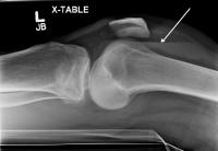 lipohemoarthrosis tibial plateau fractures