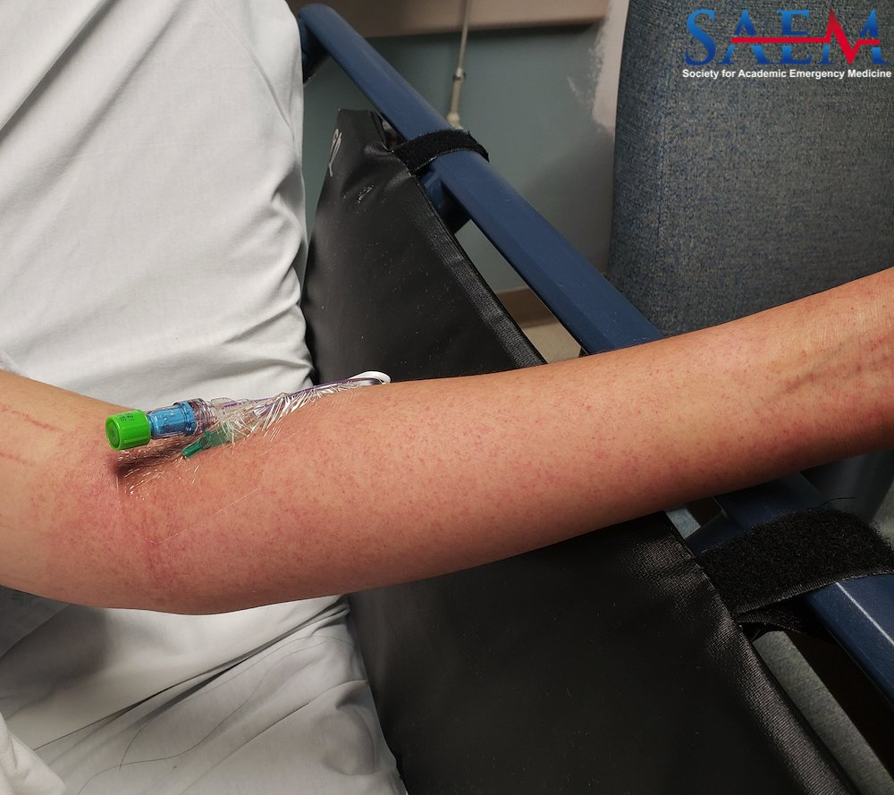 SAEM Clinical Image Series: Rash With Blood Pressure Cuff