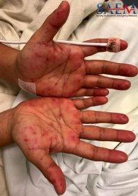 palmar rash erythema multiforme