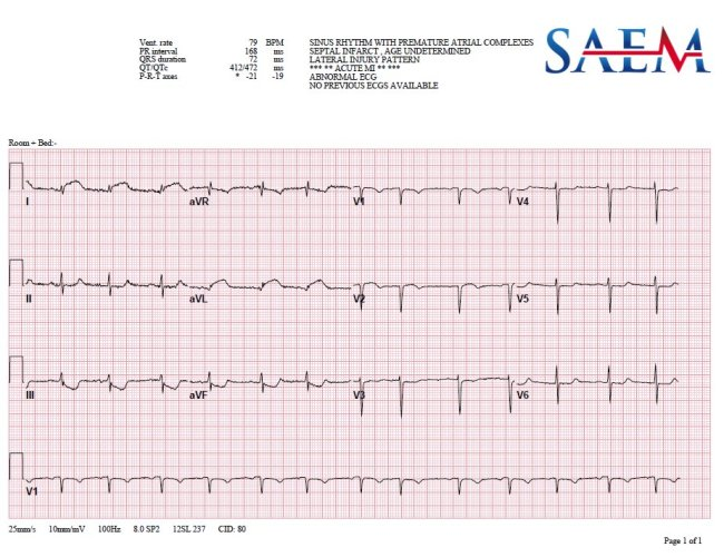 Another Heart Attack 2 ecg