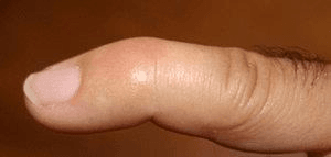 Typical appearance of mallet Finger of 2nd digit