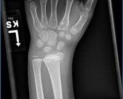 Type II Salter-Harris fracture