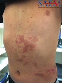 Phytophotodermatitis - A Multifactorial Skin Eruption 1