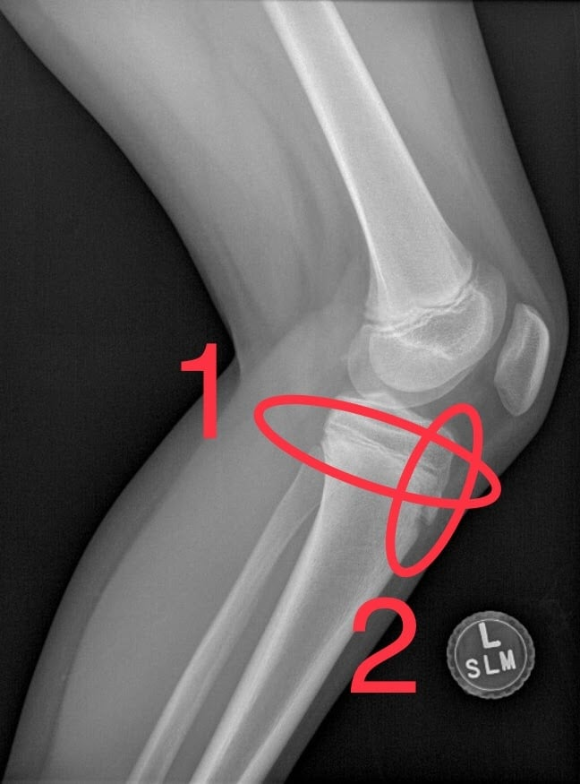 tibial tubercle fractures