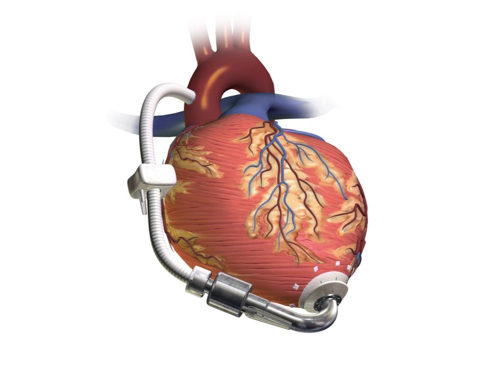 LVAD Part I Introduction and Physical Exam