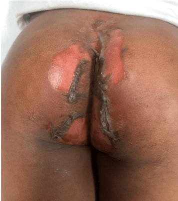 perineal burn