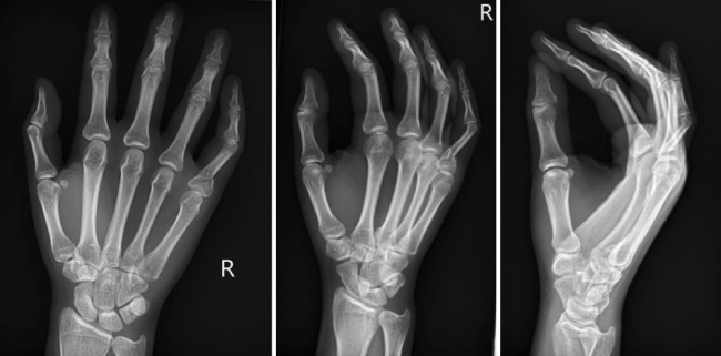 proximal phalanx fracture