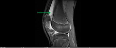 Potential complications of patellar subluxations