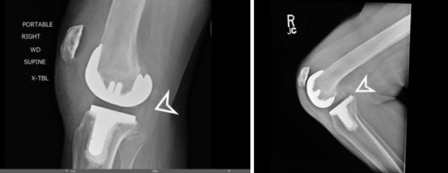 posterior tibiofemoral dislocation knee dislocation