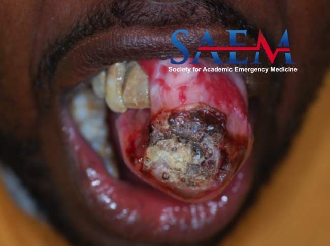oral mass