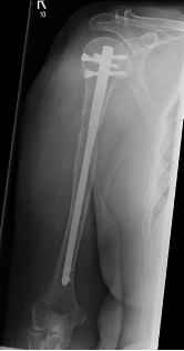 Post-operative radiographs of the right humerus with intramedullary nail