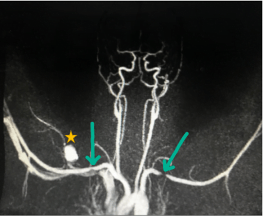MRA demonstrating bilateral stenosis of the subclavian veins