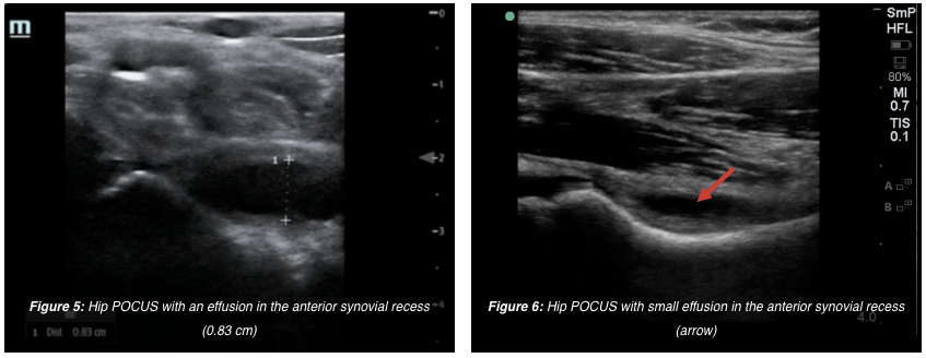 hip effusion PEM POCUS ultrasound