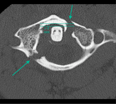 CT cervical spine of a Jefferson fracture
