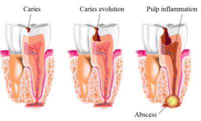 Diagram showing caries leading to abscess formation