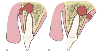 Diagram showing abscess formation around the roots of the maxillary incisors