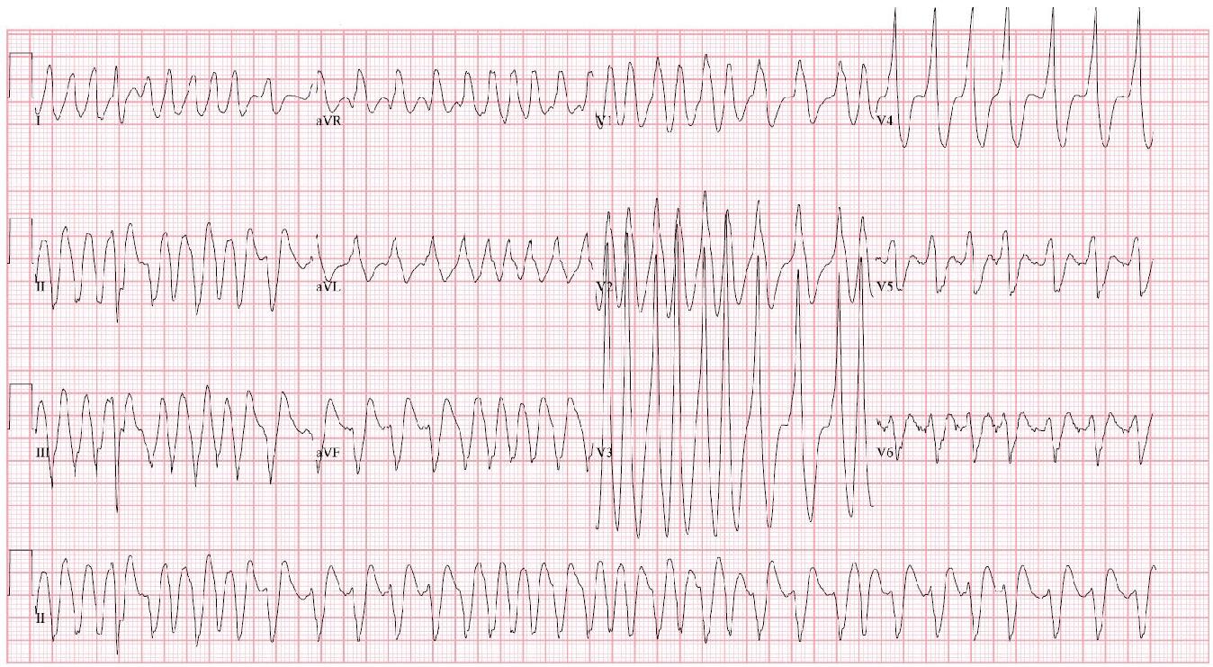 Preexcited Rapid Atrial Fibrillation