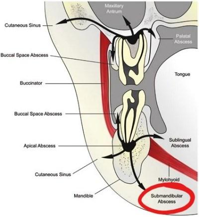 Submandibular Abscesses