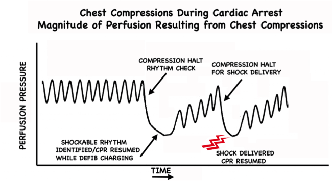 Pre-Charge the Defibrillator figure 1