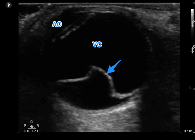 Fig 2 Retinal Detachment Labelled