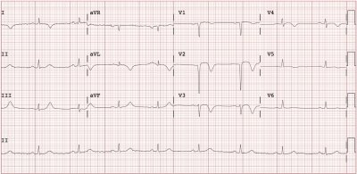 Electrocardiogram (EKG) concerning for anterior ST-elevation myocardial infarction (STEMI)