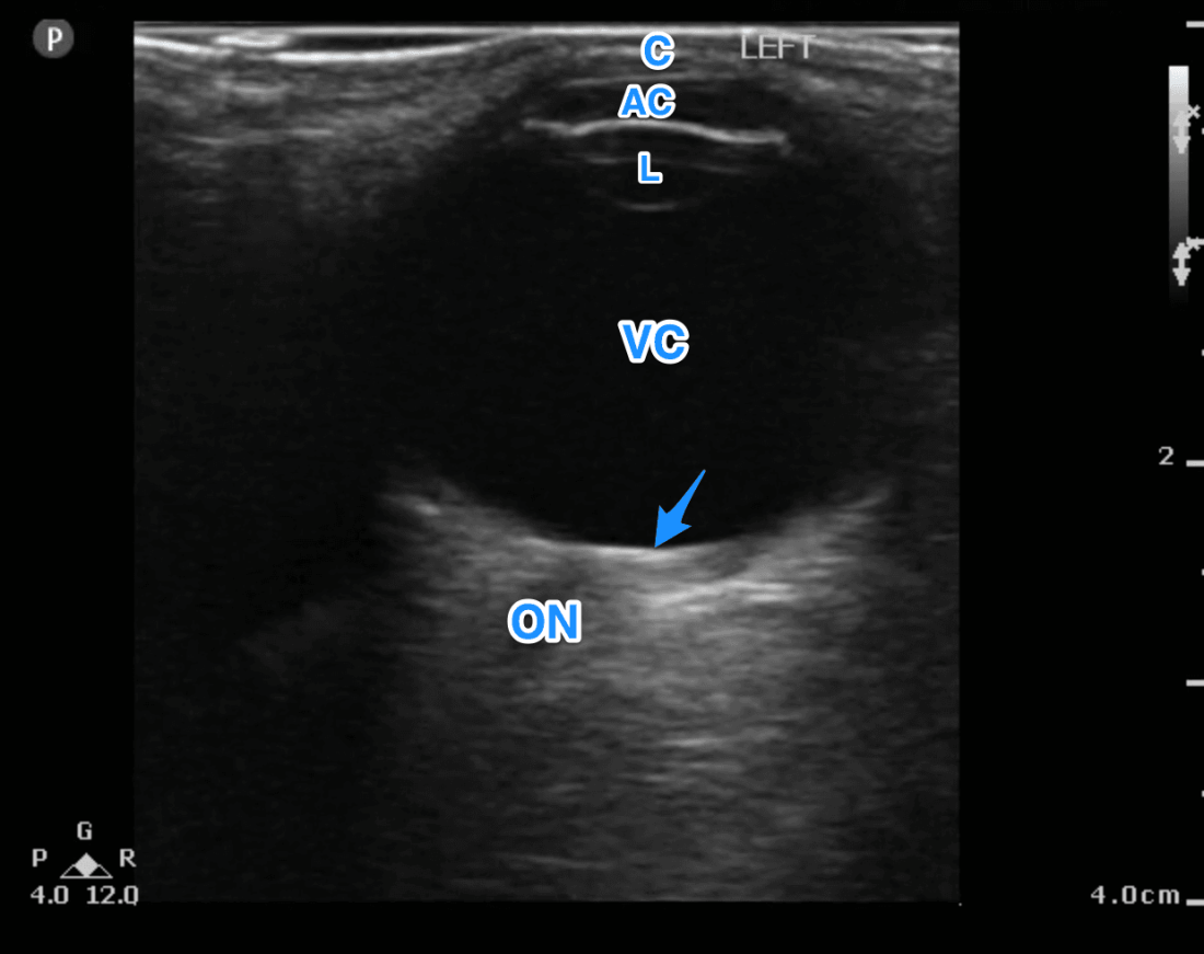 Fig 3 Normal Eye Anatomy Ultrasound