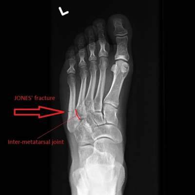 Jones fracture from Radiopedia.org