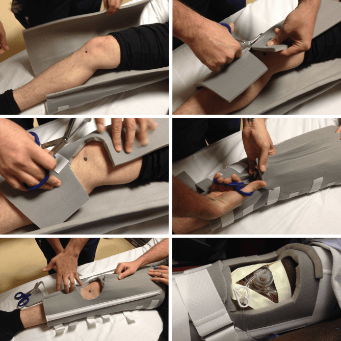 Tibial IO Immobilizer How-to