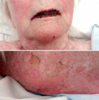 stevens-johnson syndrome