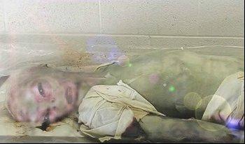dead alien picture