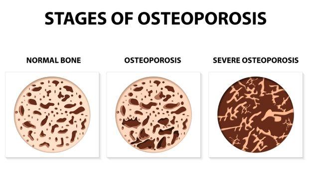 combatir la osteoporosis en los huesos