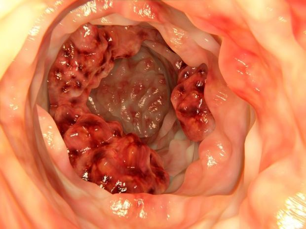 Cáncer de colon visto mediante clonoscopia