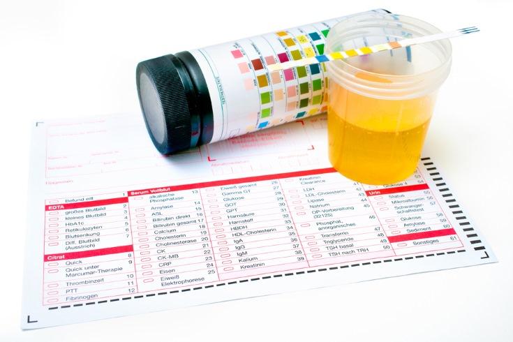 se detecta embarazo en un analisis de sangre normal