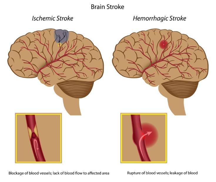 Accidentes cerebrovasculares Tipos de ictus