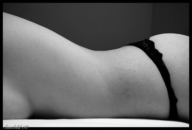 Tratamiento para las estrías en la piel
