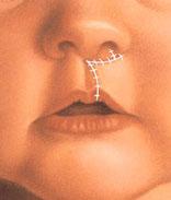 dudak-yarigi