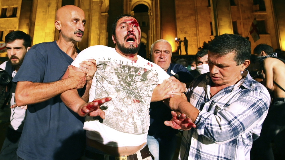 Opposition demonstrators help a wounded man during a protest at Georgian Parliament to call for the resignation of the speaker of the Georgian Parliament in Tbilisi, Georgia, Friday, June 21, 2019. Po