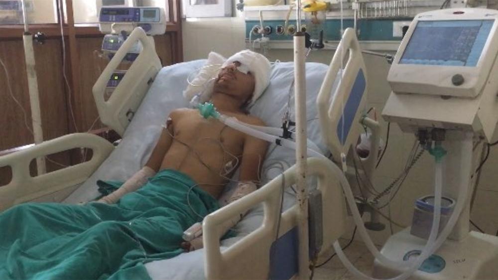 asrar khan kashmiri pellet victim