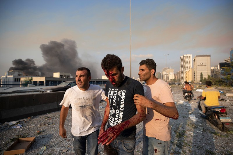People help a man who was wounded in a massive explosion in Beirut, Lebanon, Tuesday, Aug. 4, 2020. Massive explosions rocked downtown Beirut on Tuesday, flattening much of the port, damaging building