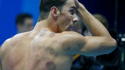 Round marks on Phelps' back from cupping therapy.