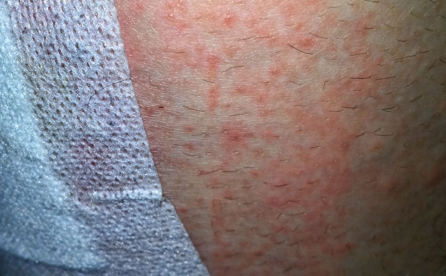 Possible Causes Of Hives