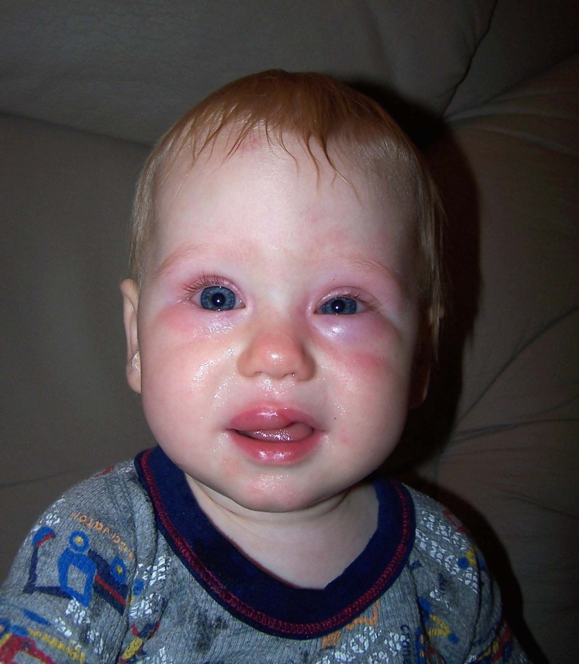 Image Result For Mango Allergy Swollen Eyes