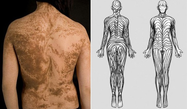 Blaschkos lines - TOP 10 INCREDIBLE FACTS ABOUT THE HUMAN BODY