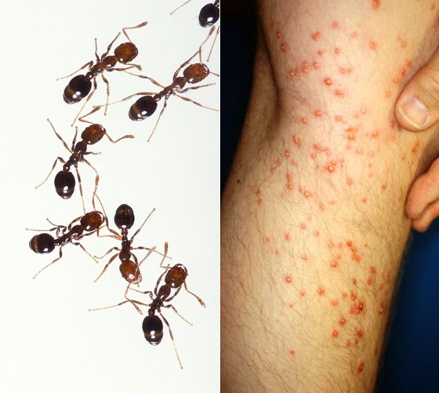 Vuurmieren - TOP 10 MOST PAINFUL INSECT BITES