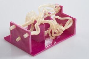Le jumeau numérique permet de créer plus rapidement des prototypes pour améliorer le traitement d'anévrisme. ©Sim&Cure