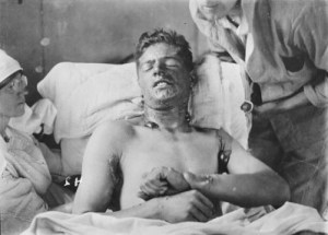 A Canadian victim of mustard gas at No.7 Canadian General Hospital, Etaples, c. 1917 (Library and Archives Canada/ Wikimedia).