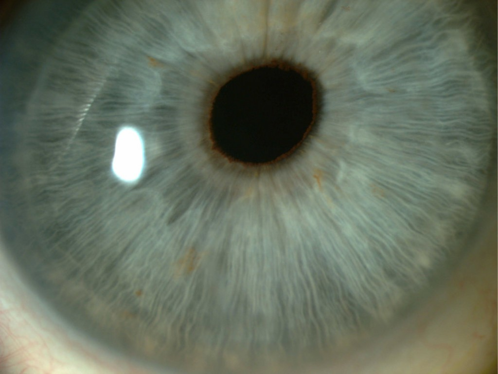 What Causes Eye Floaters and Spots? | Allon Barsam