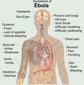 ebloa-symptoms