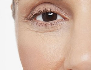 Dermal Fillers, Cosmetic Injections, Allure Clinic Mackay